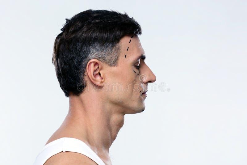 人标记用整容手术的线 图库摄影