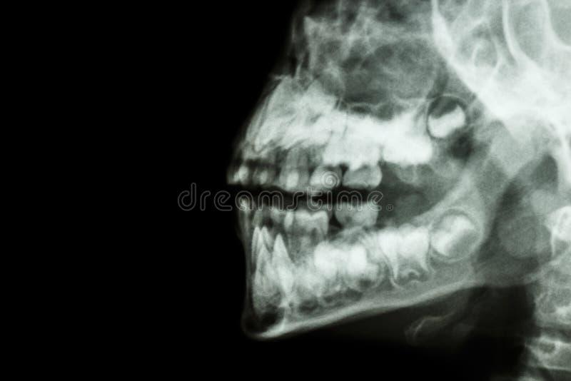 人的下颌和牙 库存照片