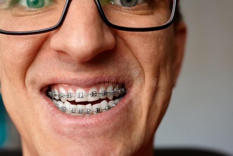 人的弯曲的牙有括号的在玻璃关闭  画象  图库摄影