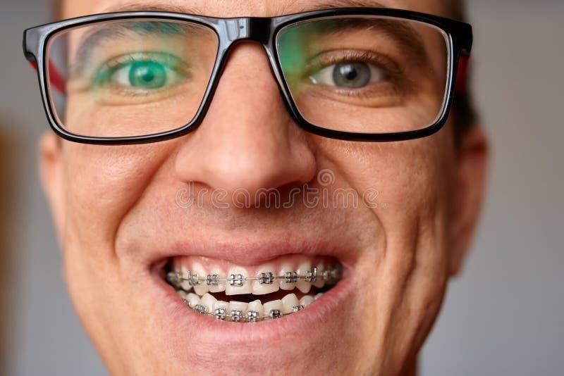 人的弯曲的牙有括号的在玻璃关闭  画象  库存照片