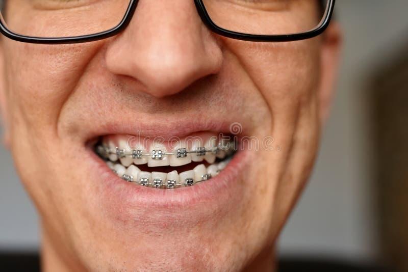人的弯曲的牙有括号的在玻璃关闭  画象  免版税库存照片