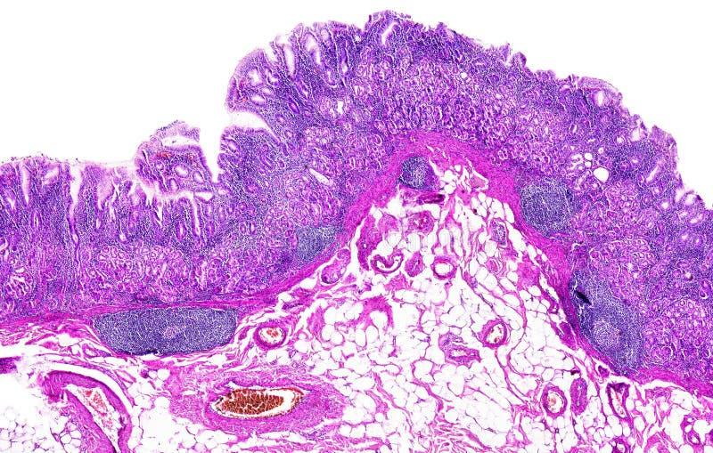 人的慢性胃炎 免版税库存图片