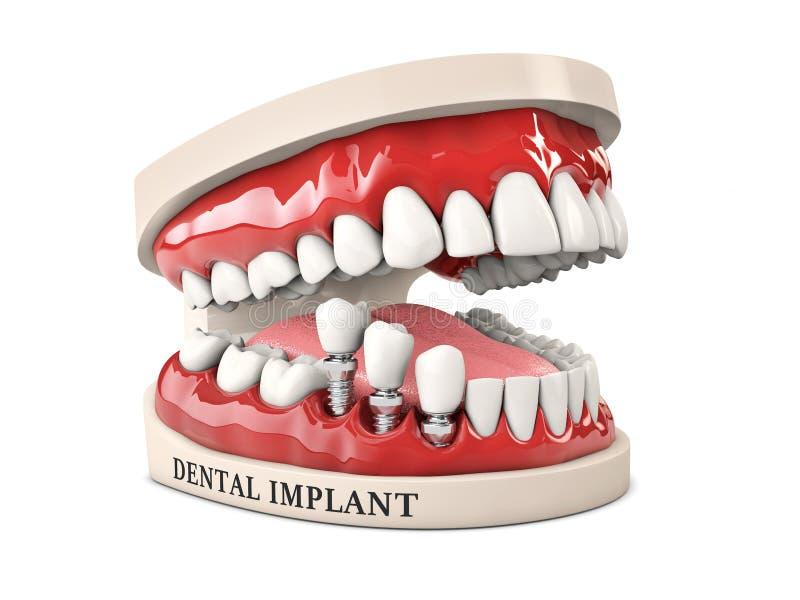 人的牙和牙插入物 储蓄3d例证 库存例证