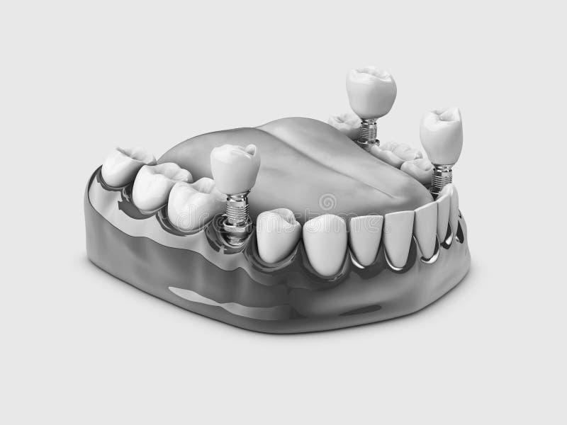 人的牙和牙插入物 黑白3d例证 皇族释放例证
