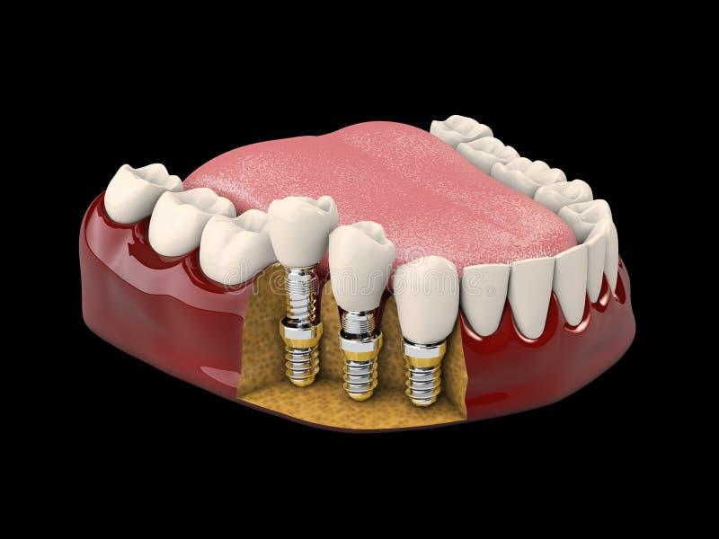 人的牙和牙插入物 3d例证被隔绝的黑色 库存例证