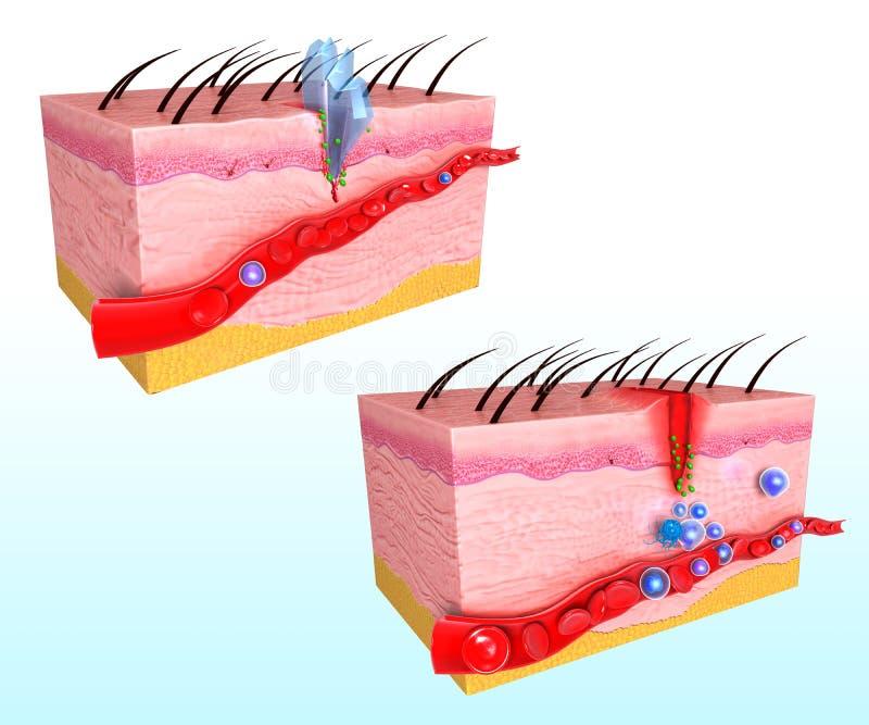 人的皮肤免疫反应系统  库存例证