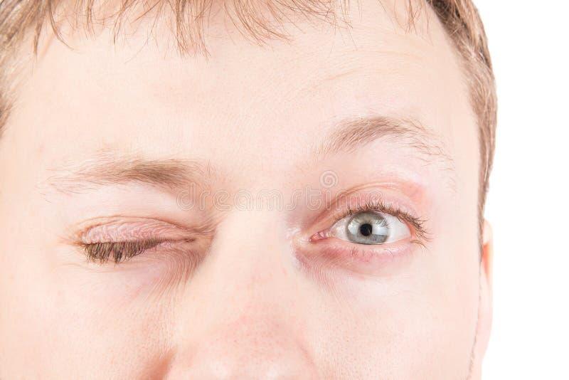 人的眨眼睛眼睛 库存图片