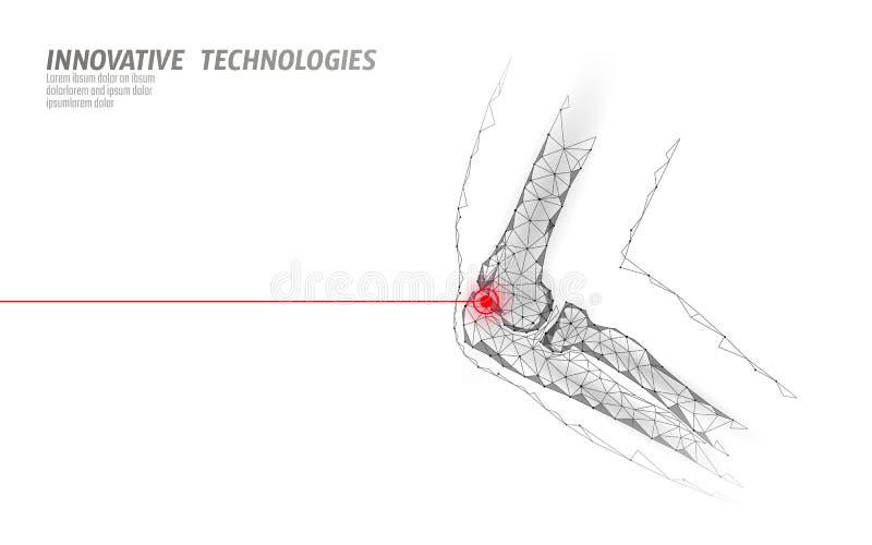 人的肘关节3d模型传染媒介例证 r 奶油被装载的饼干 向量例证