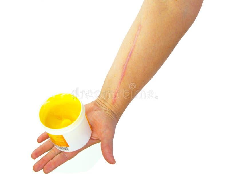 人的胳膊以心脏病手术手术后伤痕  免版税图库摄影
