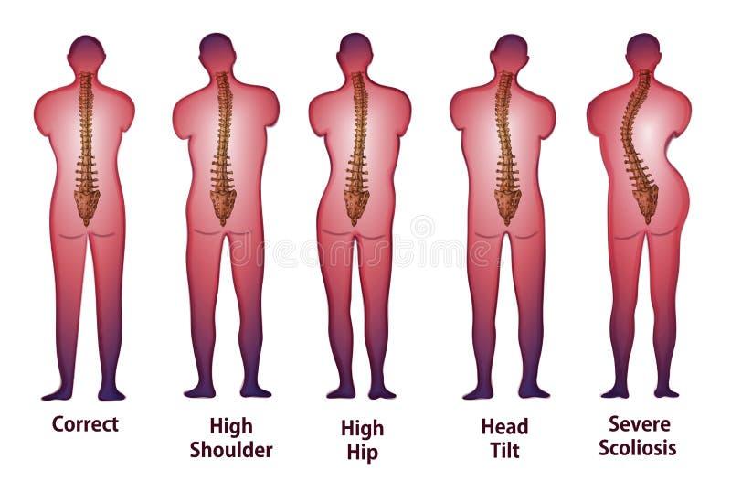 人的脊椎姿势后面视图 皇族释放例证