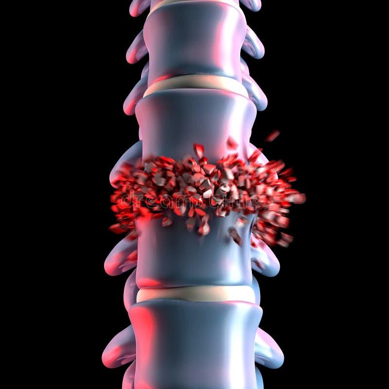 人的脊髓骨头3d 库存例证