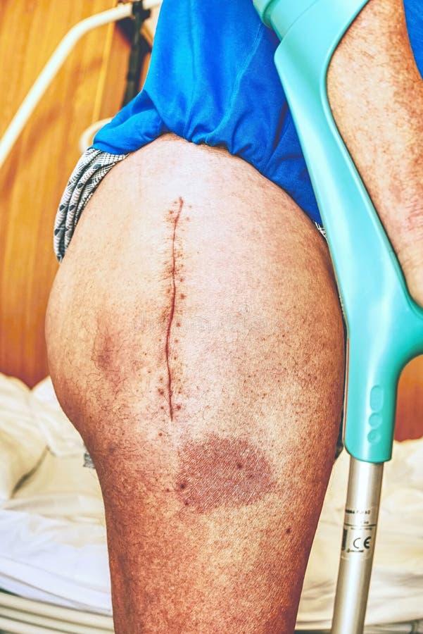 人的腿以联合手术手术后伤痕  皮肤细节  库存图片