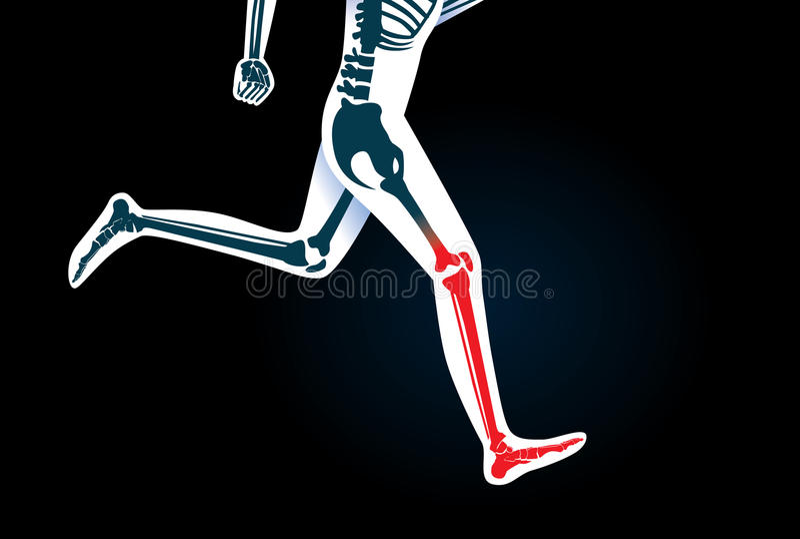 人的腿骨头和脚,当奔跑有一个红色信号时 库存例证
