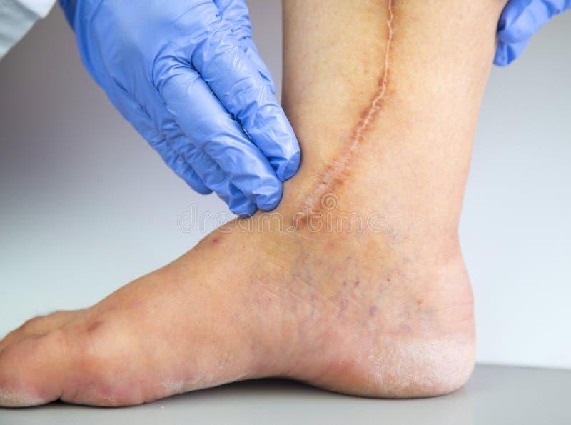 人的腿以心脏病手术手术后伤痕  免版税库存照片