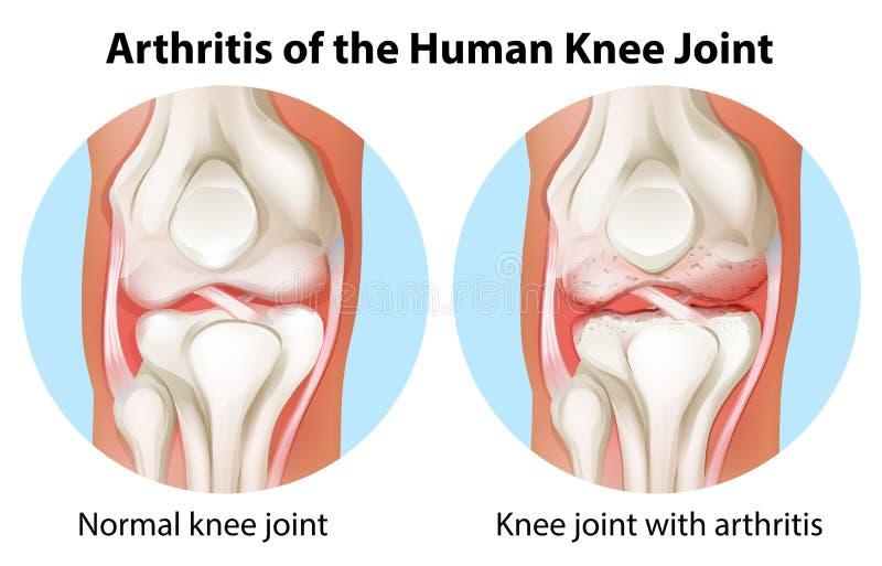 人的膝盖关节的关节炎 库存例证