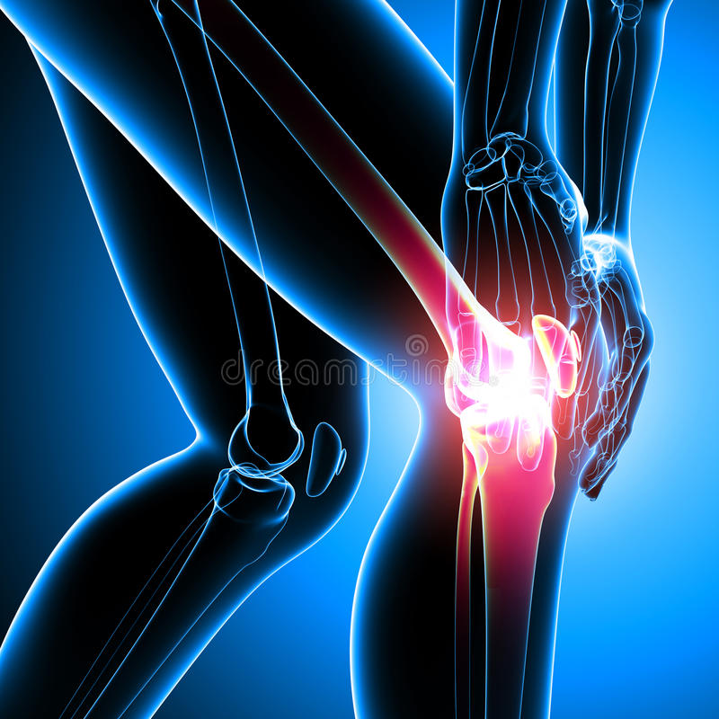 人的膝盖痛苦 皇族释放例证