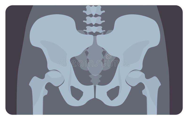 人的骨盆或臀部骨头先前射线照相有腰部部分的 X射线辐射人的骨骼系统的图片或图象,前面 皇族释放例证