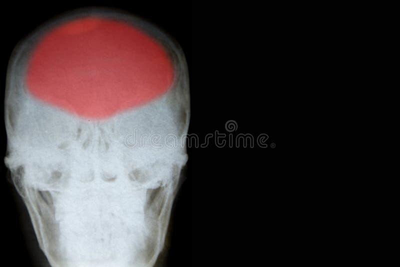 人的头骨 免版税图库摄影