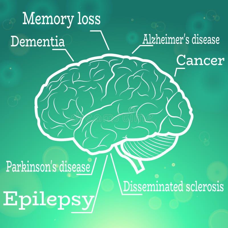 人脑疾病 库存图片
