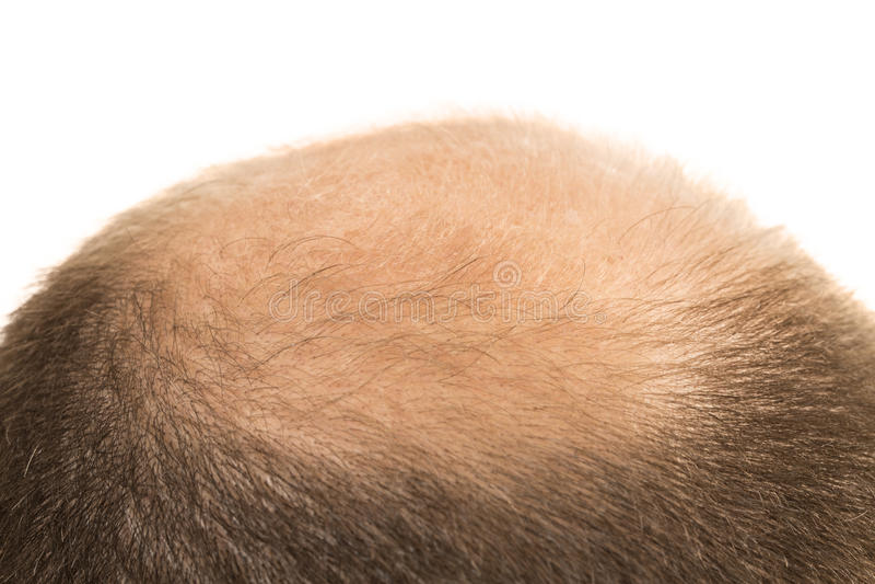 人脱发症光秃被隔绝的掉头发 库存图片