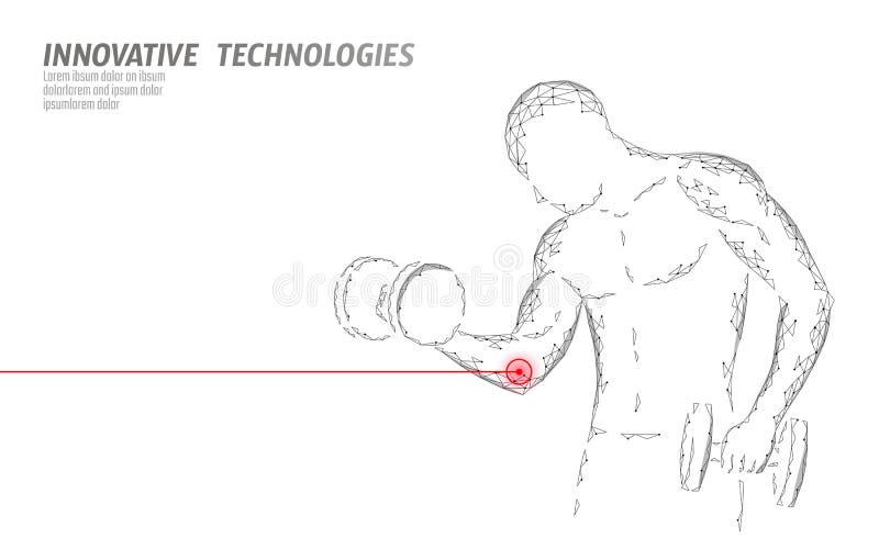 人训练以哑铃肘伤 红色痛苦的区域多角形运动医学抽象概念 严格 向量例证