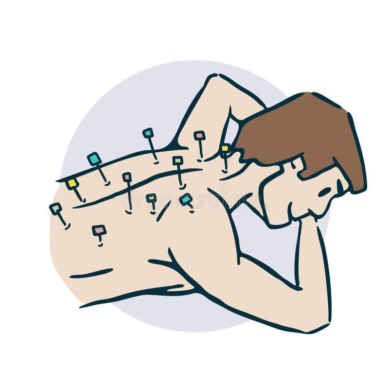 人黏附针针灸stiker 向量例证