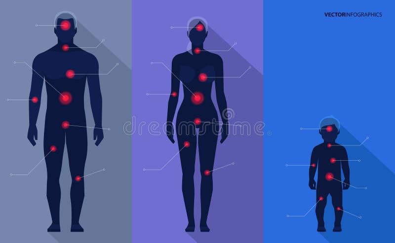 人,妇女,孩子,痛苦指向 传染媒介医疗infographics 向量例证