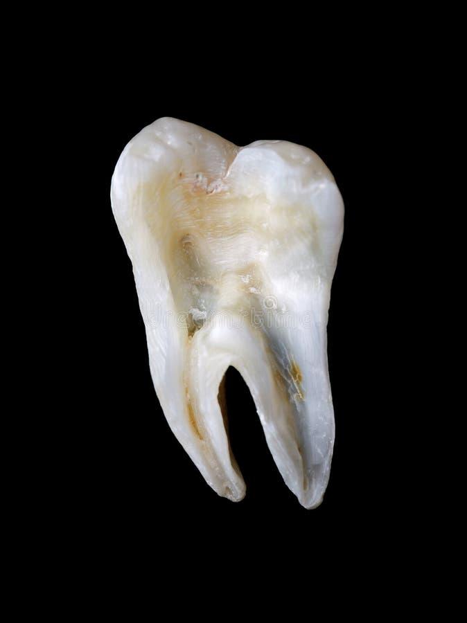 从一颗人力牙的纵切面 免版税库存图片
