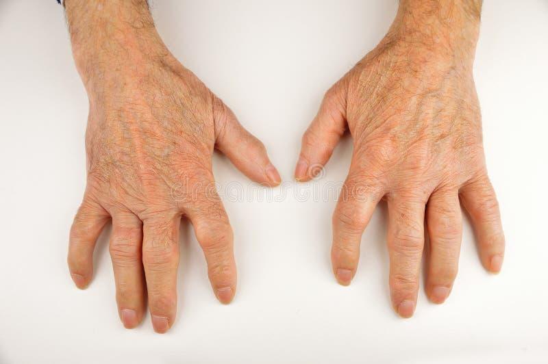 从风湿性关节炎扭屈的手 库存照片