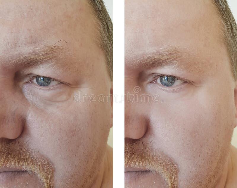 以前膨胀在做法以后的男性眼睛皱痕 库存照片