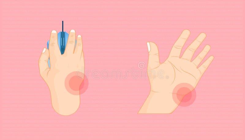 休息您的关于的腕子问题与一起使用鼠标点击长期 美好的颜色背景 r 皇族释放例证