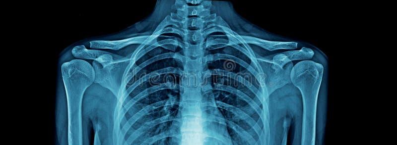 优质胸部X光和肩膀和锁骨 免版税库存图片