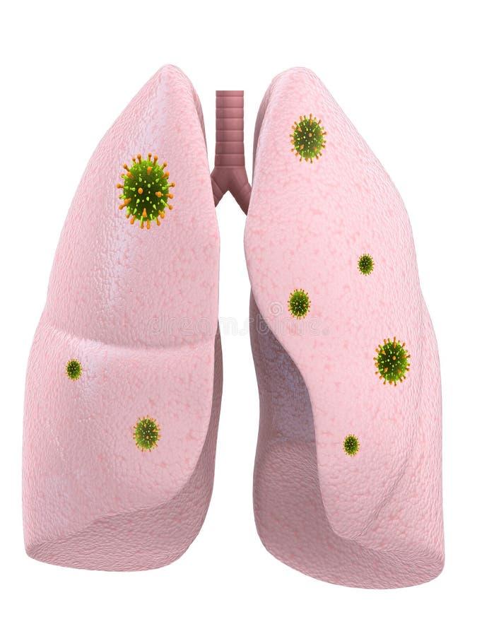 传染肺 库存例证