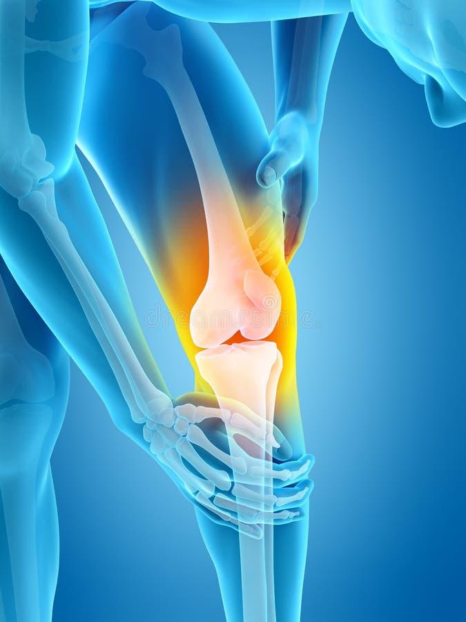 伤害膝盖公痛苦赛跑者连续体育运动 库存例证
