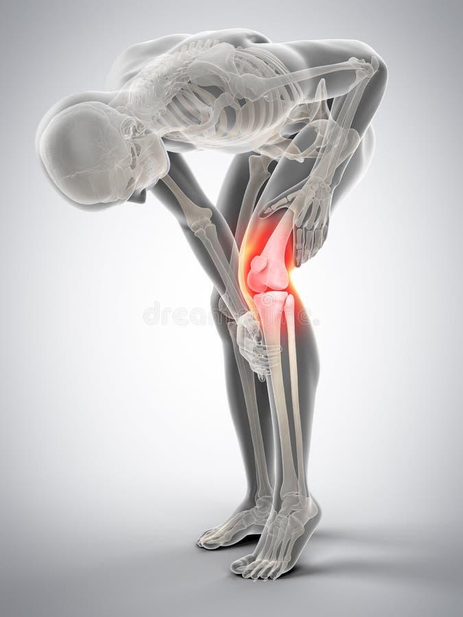 伤害膝盖公痛苦赛跑者连续体育运动 向量例证