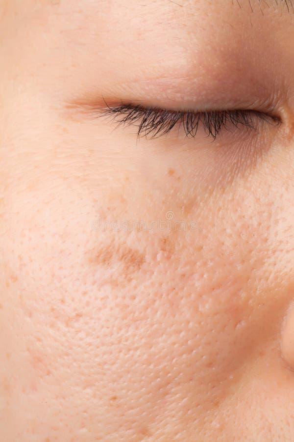 伤痕皮肤问题 免版税库存照片