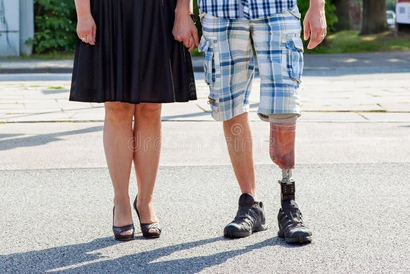 佩带一条义肢腿的男性被截肢者 库存照片