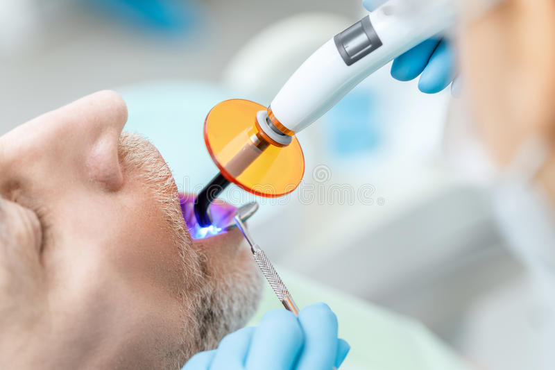 使用在患者的牙的牙医牙齿治疗的紫外灯 图库摄影
