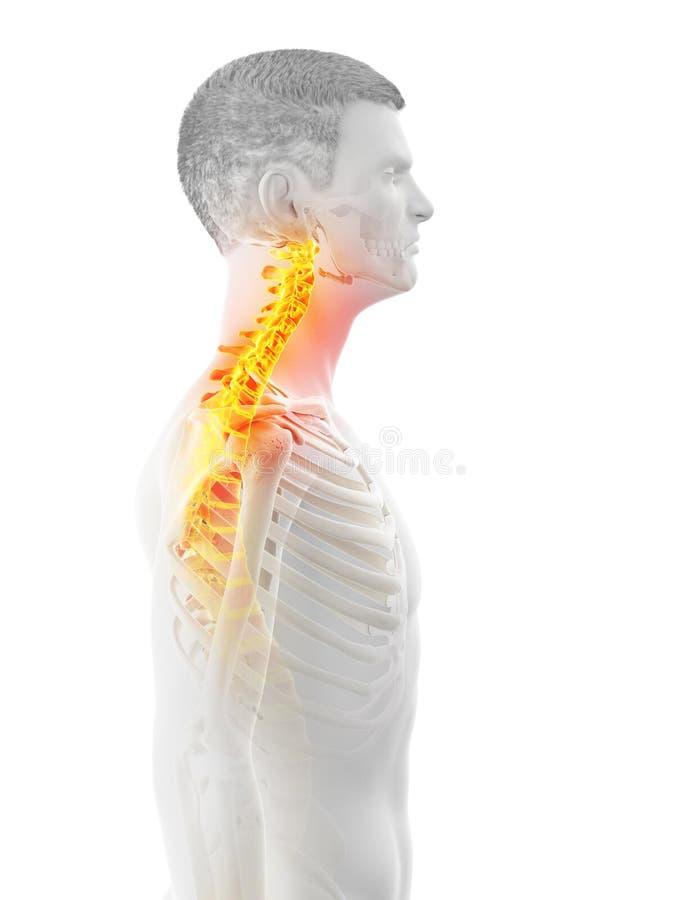 供以人员痛苦的脖子 库存例证