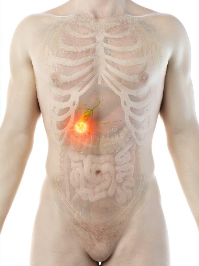 供以人员胆囊肿瘤 向量例证