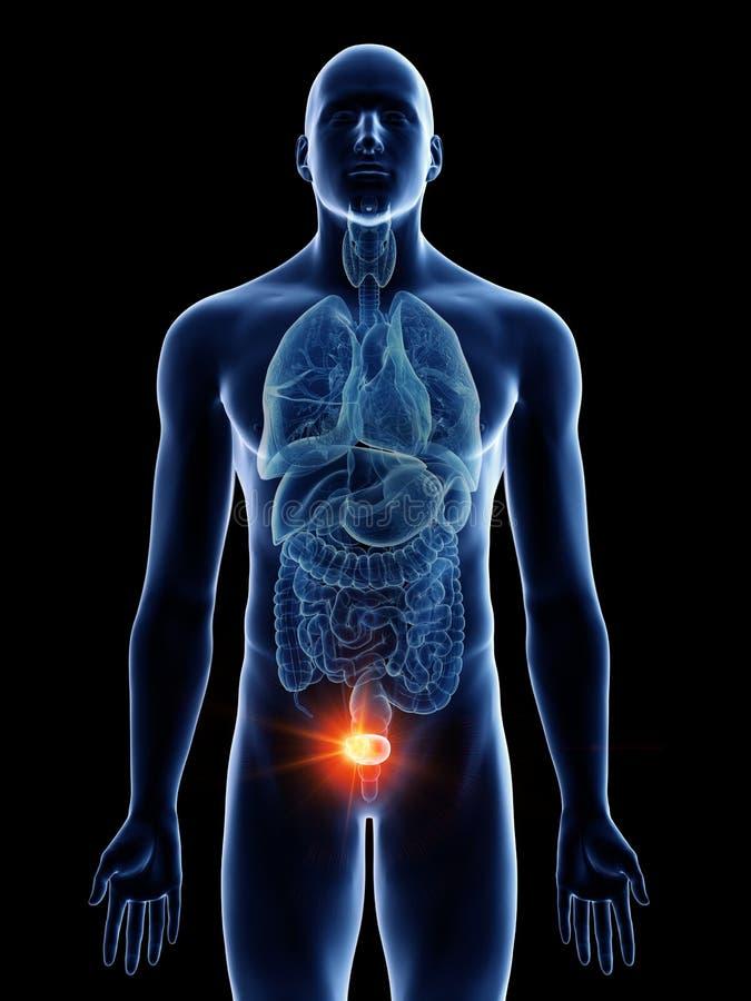 供以人员膀胱癌 向量例证