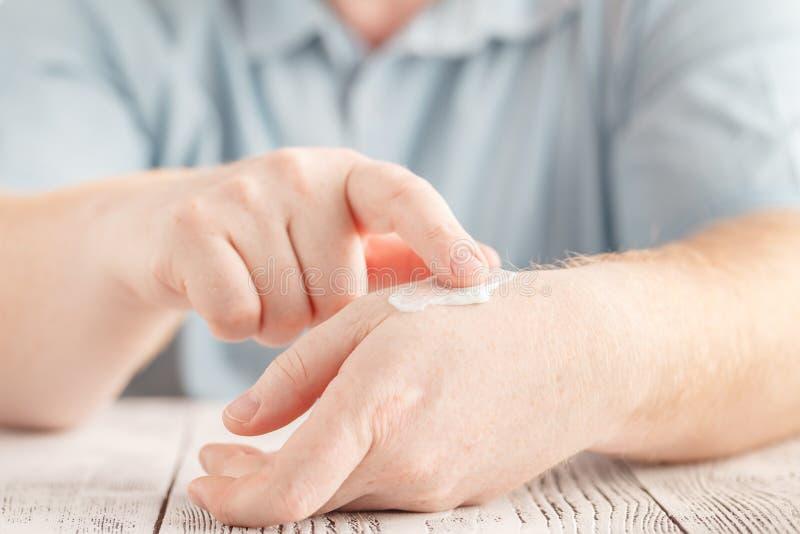 供以人员应用在手上的润肤霜奶油,干性皮肤 免版税图库摄影