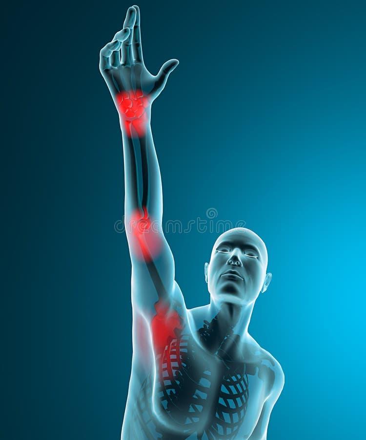 供以人员看见由充满痛苦的X-射线在肩膀、手肘和腕子 库存例证