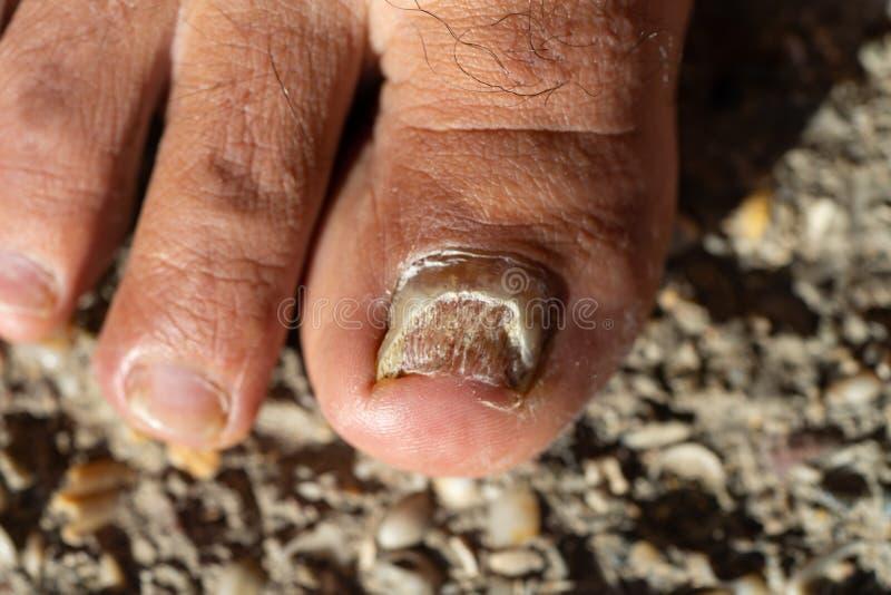假丝酵母Albicans脚趾钉子 库存图片