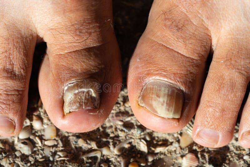 假丝酵母Albicans脚趾钉子 免版税库存图片