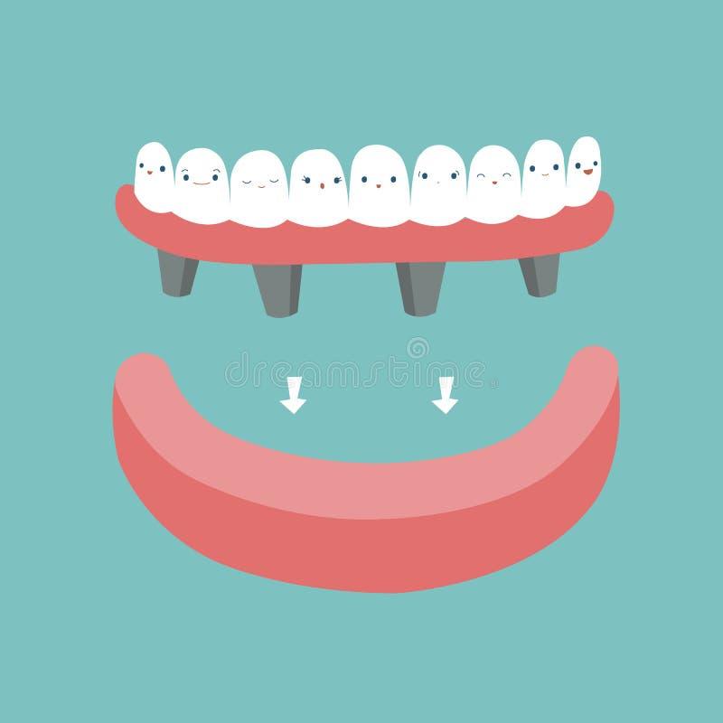 假牙、牙和牙概念的牙齿 库存例证