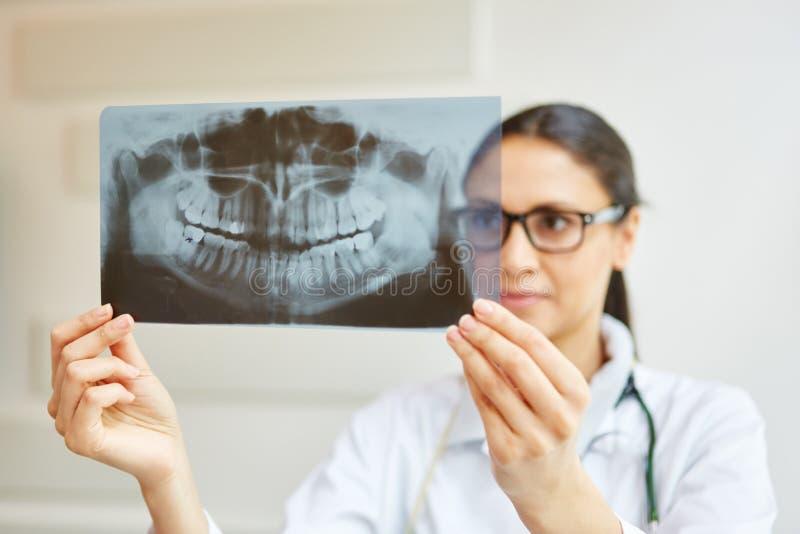 假牙的X-射线图象 免版税库存照片