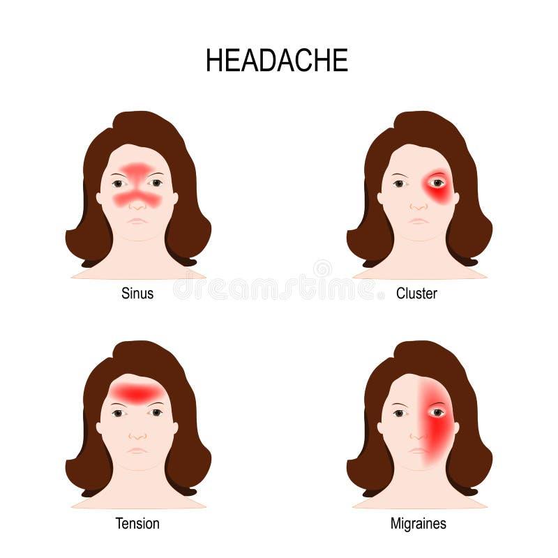 偏头痛和头疼 库存例证