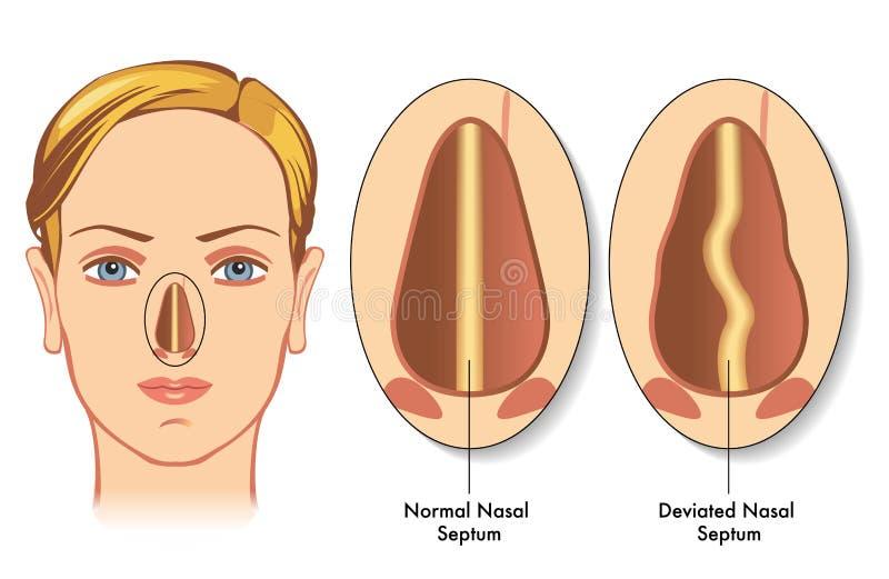 偏离的鼻中隔 向量例证