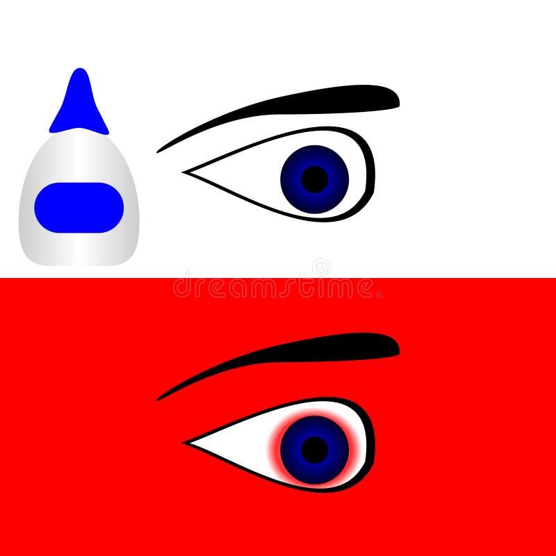 健康两只的眼睛病和 库存例证